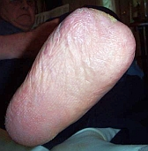 K. Gibson's father, May 2008. The foot now appears to be totally healed by taking the Gangrene Clear-G Formula.