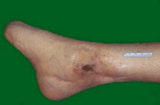 A diabetic foot with a previous healed transmetatarsal amputation demonstrates an ulcer in the region of the ankle.