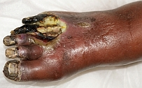 Picture of the right foot with gangrenous toes of 81-year-old mother of Dorothy Blair, Essex, UK taken in August 2009, following discharge from hospital during which she underwent extensive debridement because of hospital acquired infection on the foot.
