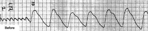 A plethysmograph of both feet of a 57-year-old male, prior to the nutritional revascularization program - the decreased size of the waveform, the oval peaking and the indisinct low volume peaks.