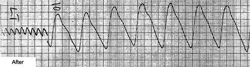 A plethysmograph of the same feet of the same 57-year-old male, after 6 weeks of the nutritional revascularization program - the increased size of the waveform, the sharper peaking and the distinct low volume peaks.